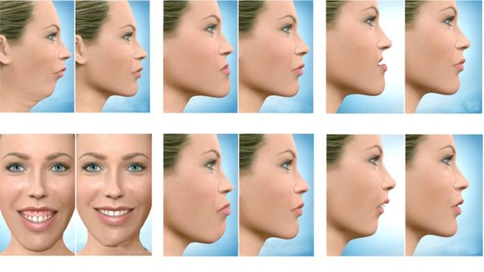 جراح دهان، فک و صورت اصفهان انواع جراحی فک