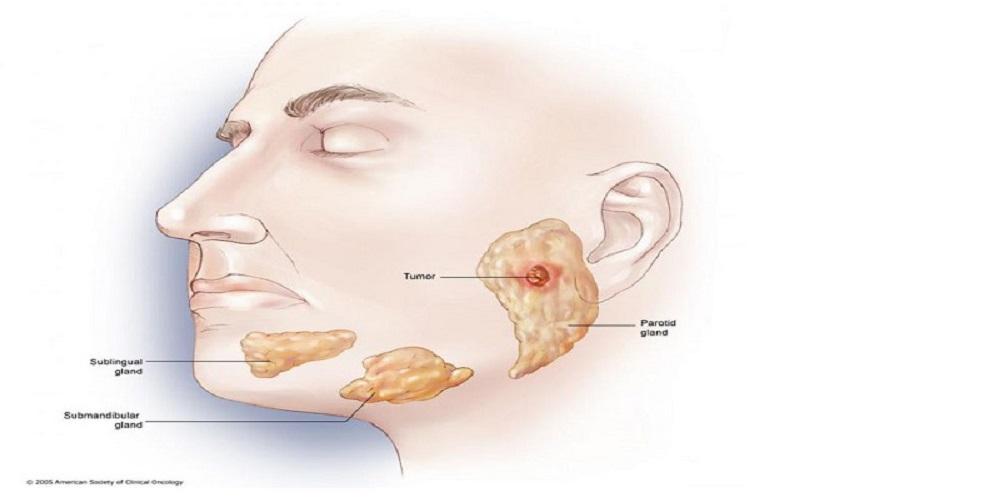 جراح دهان، فک و صورت اصفهان جراحی تومورها و کیست های خوش خیم و بدخیم فک و صورت