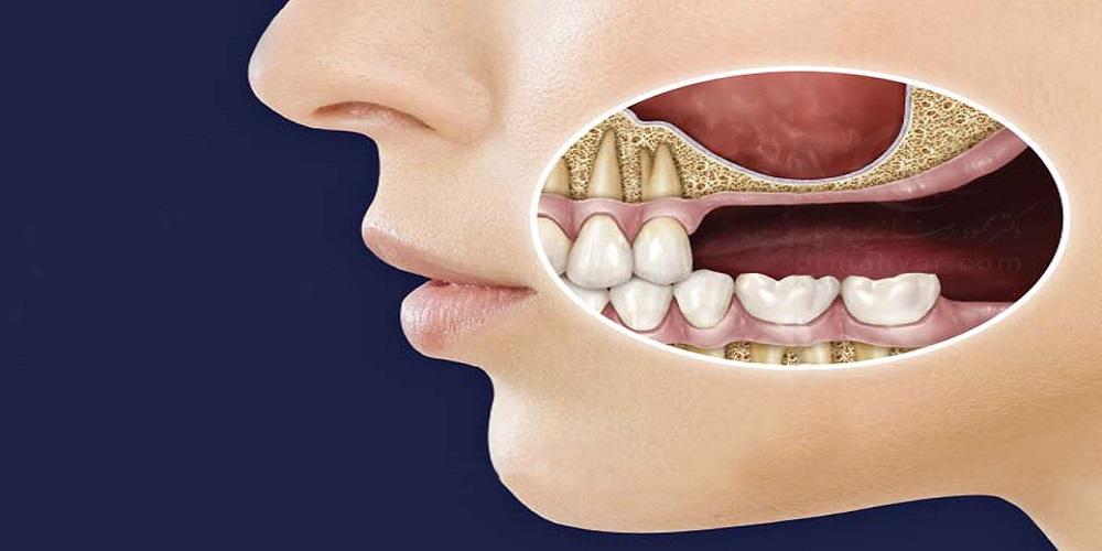 جراح دهان، فک و صورت اصفهان جراحی عفونت های فک و صورت