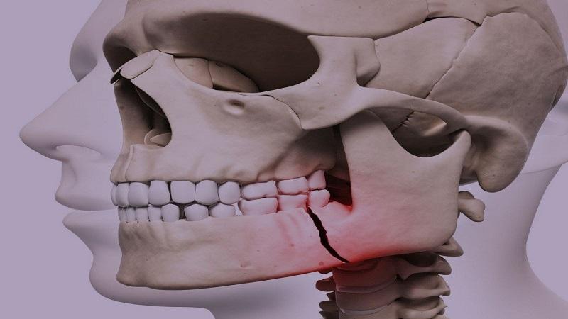 جراح دهان، فک و صورت اصفهان شکستگی های فک و صورت