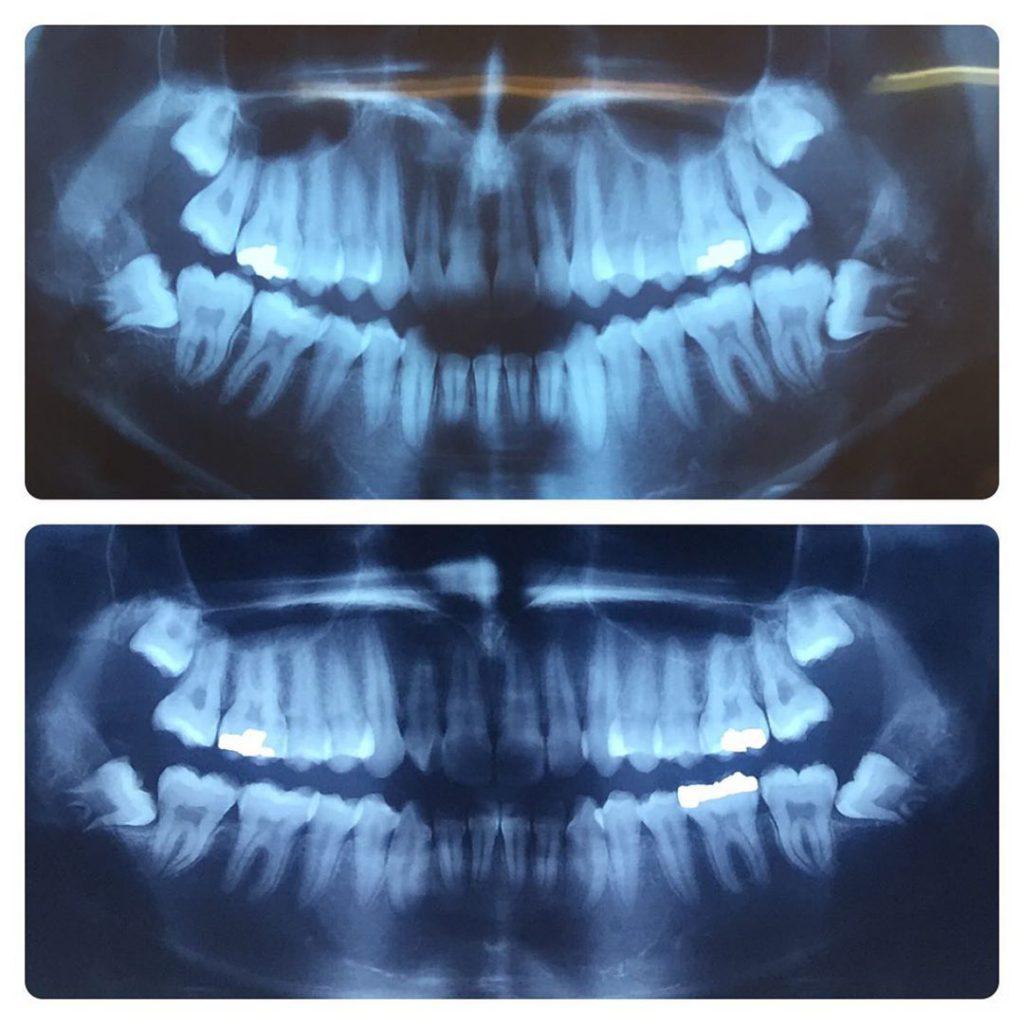 جراح دهان، فک و صورت اصفهان Note Same 3rd molar impaction pattern in twin brothers