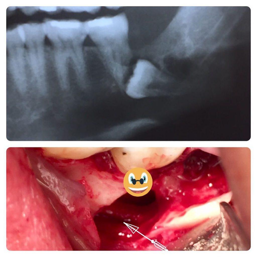 جراح دهان، فک و صورت اصفهان Surgical extraction of very deep impacted third molar in adjucent to mandibular nerve with pathologic lesion . & Nerve is intact at last