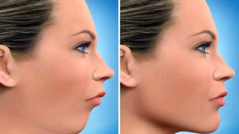 جراح دهان، فک و صورت اصفهان در چه شرایطی عمل جراحی فک لازم است؟