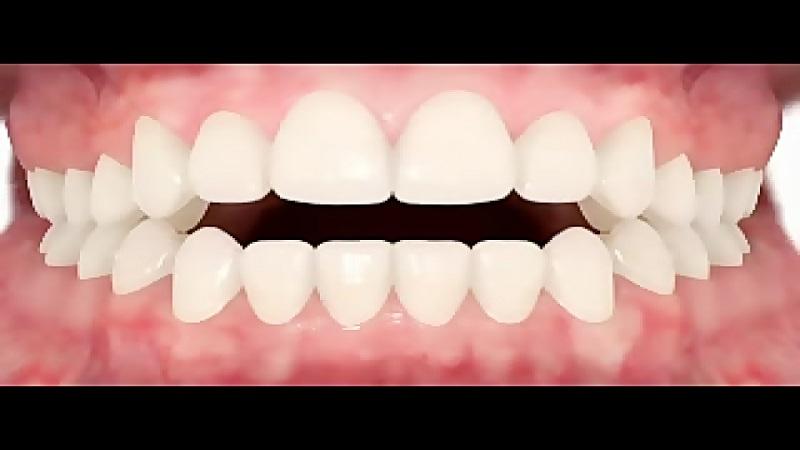 جراح دهان، فک و صورت اصفهان اپن بایت