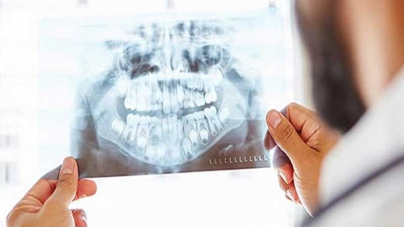 جراح دهان، فک و صورت اصفهان جراح دهان