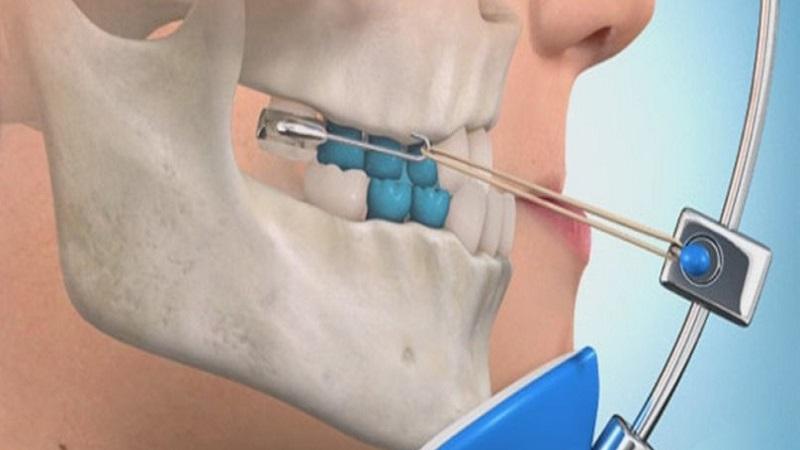 جراح دهان، فک و صورت اصفهان کوچکی فک بالا