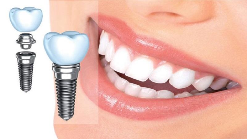 جراح فک و صورت اصفهان افزایش طول عمر ایمپلنت دندان