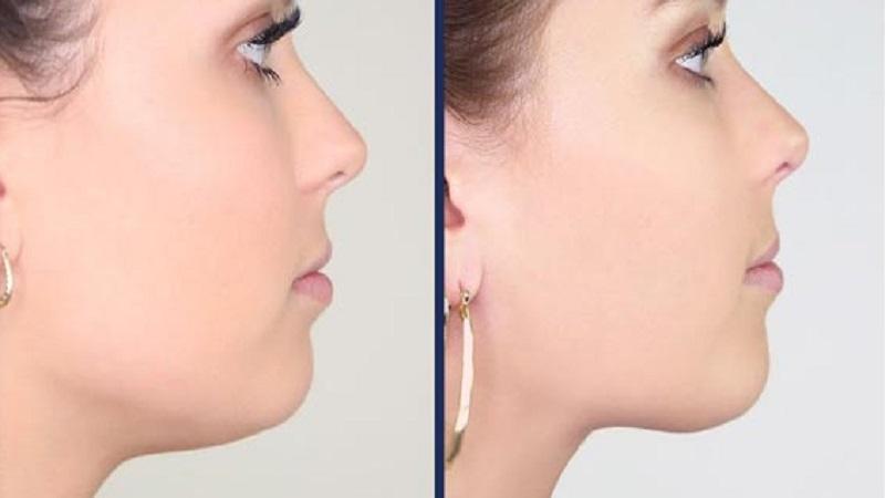 جراح فک و صورت اصفهان درمان با جراحی فک و صورت