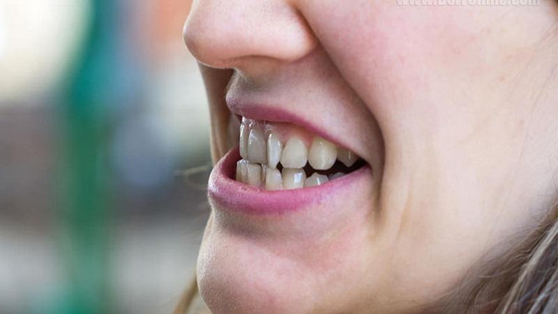 نامرتبی و شلوغی دندانه