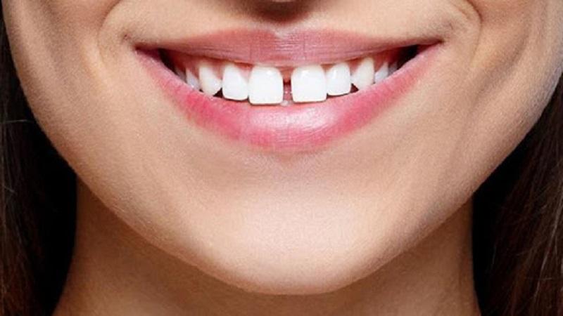 وجود فاصله در بین دندانها