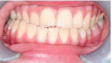 کراس بایت دندانهای قدامی