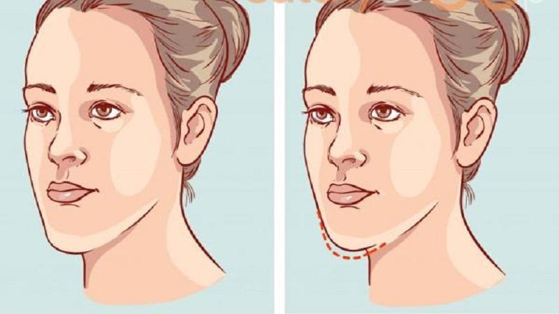 جراح فک و صورت اصفهان جراحی فک بر صورت و بینی