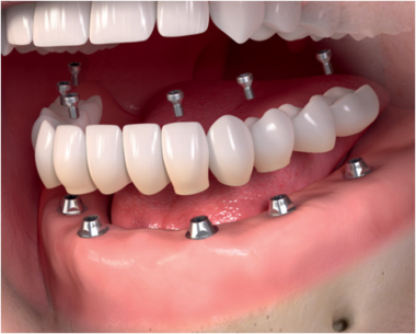 جراح فک و صورت اصفهان ایمپلنت دندان