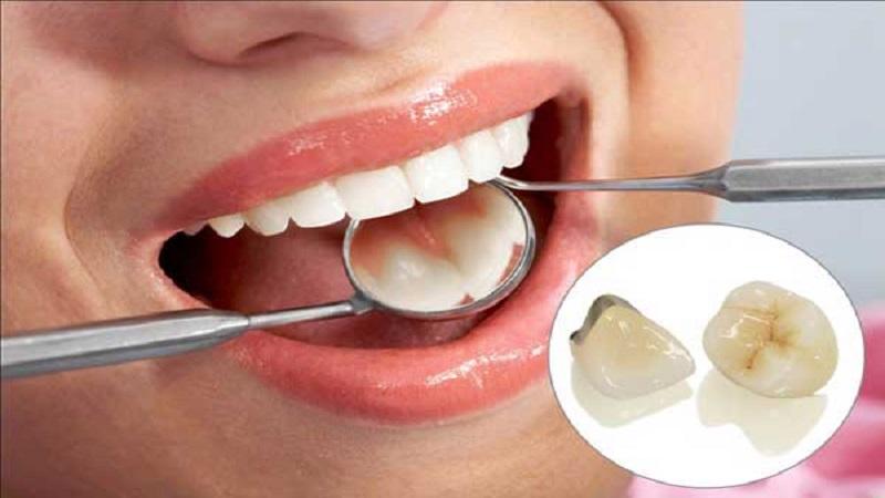 جراح فک و صورت اصفهان انواع روکش دندانی