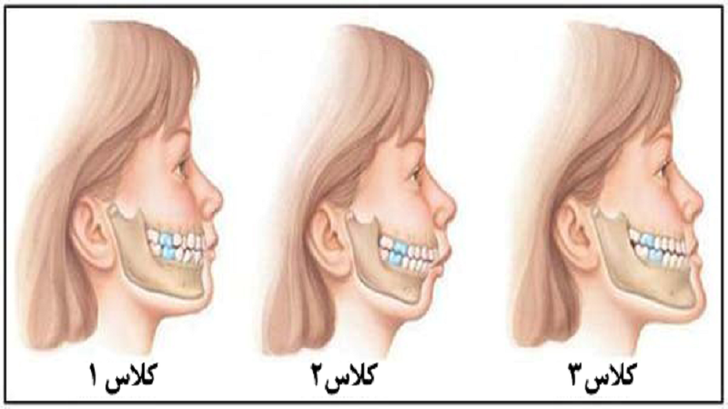 جراح فک و صورت اصفهان عقب بودن فک بالا