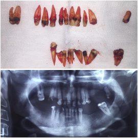 جراحی و کشیدن دندان