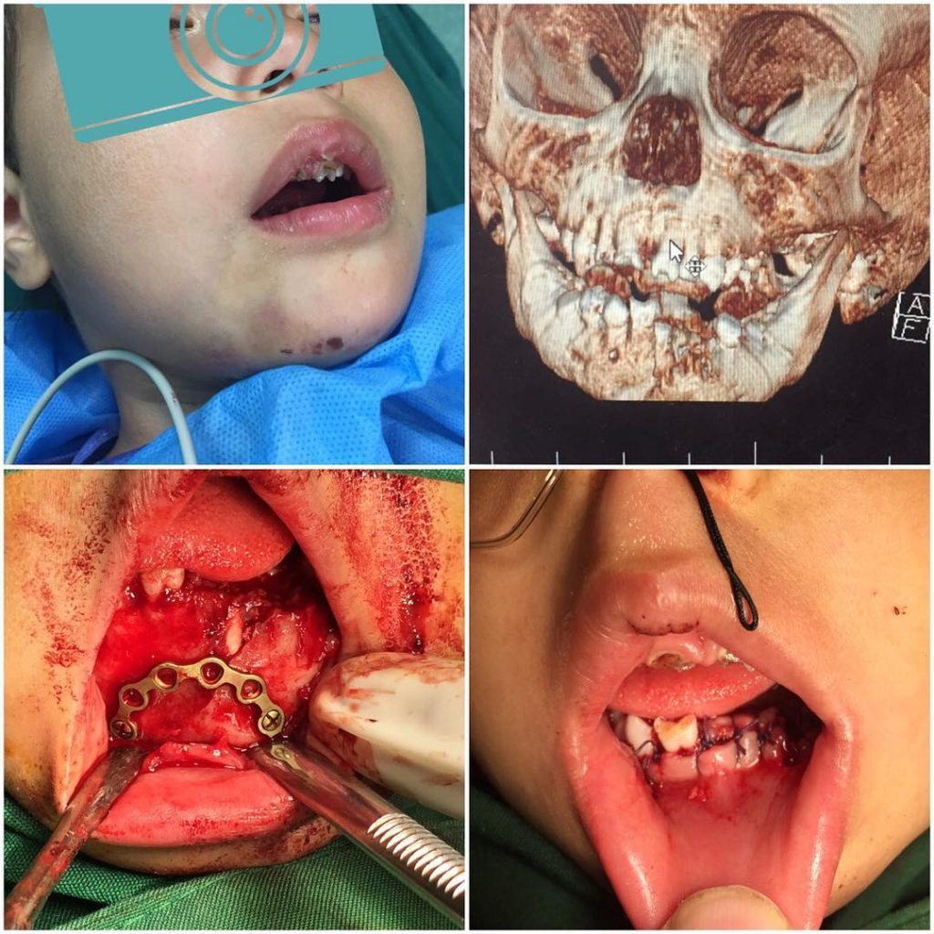 Use of bow plating in a 3y boy due to avoid permanent buds damage An innovate method by my dear prof Dr Navab Azam