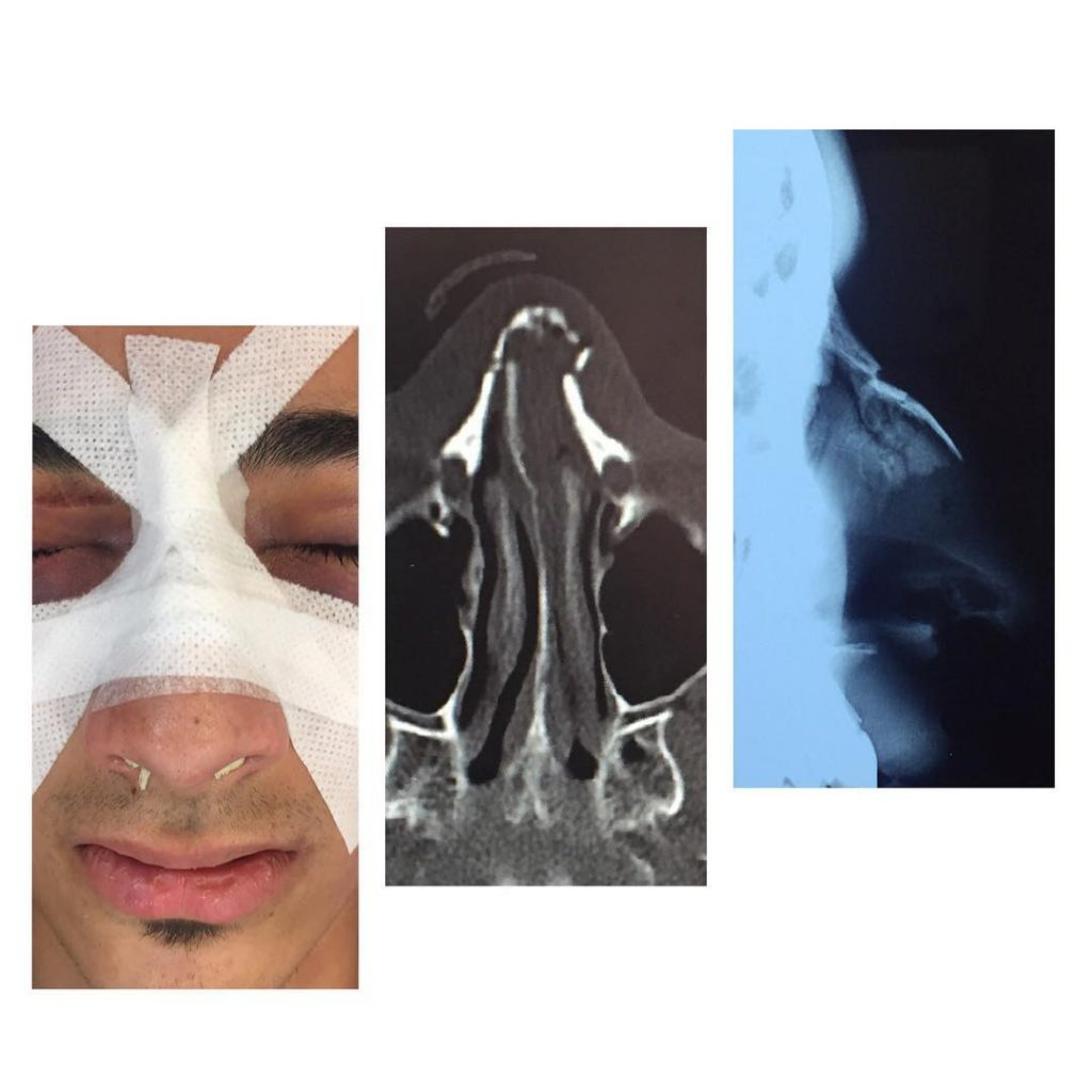 Lateral Nasal and Septum Fx with deviation