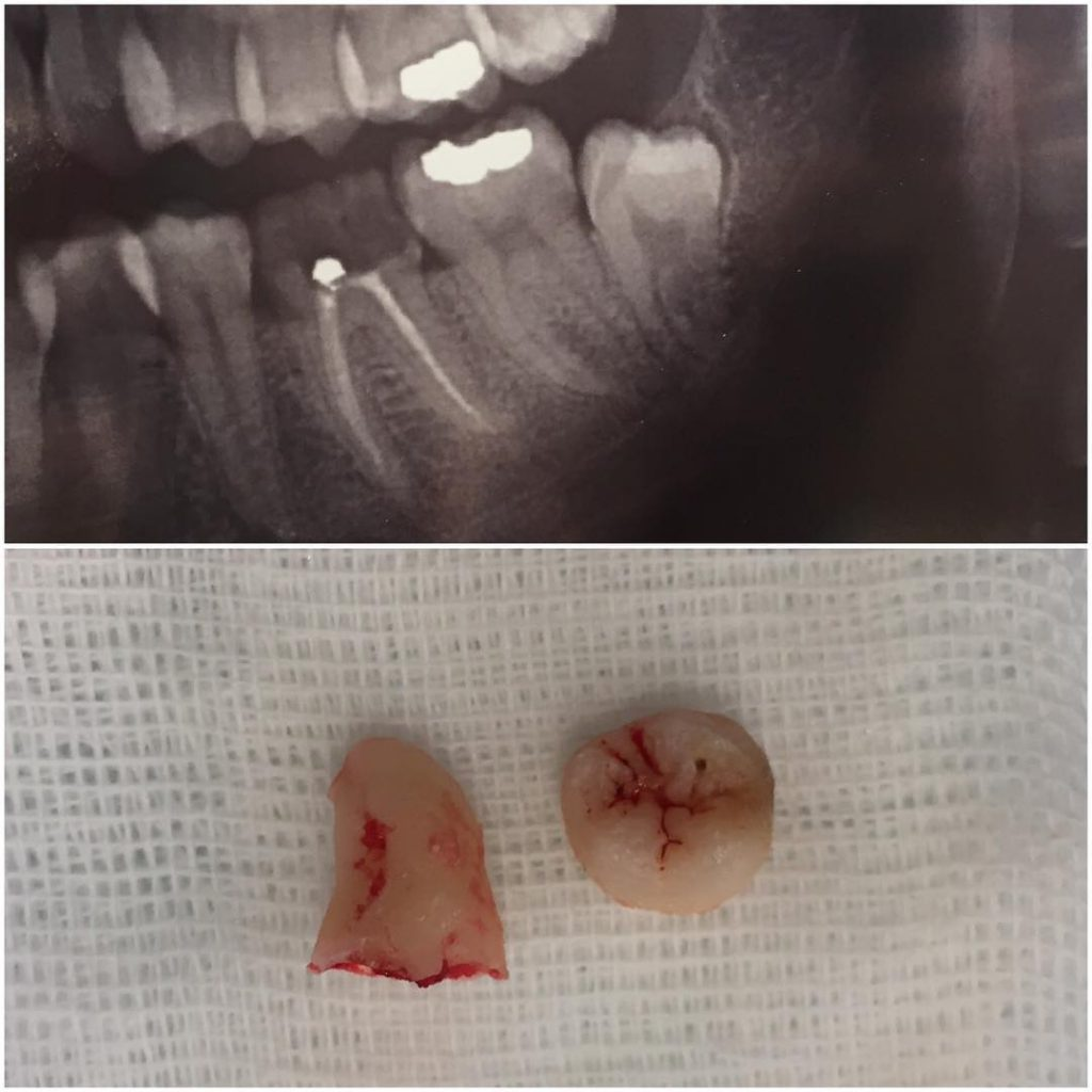 Distoangular lower third molar