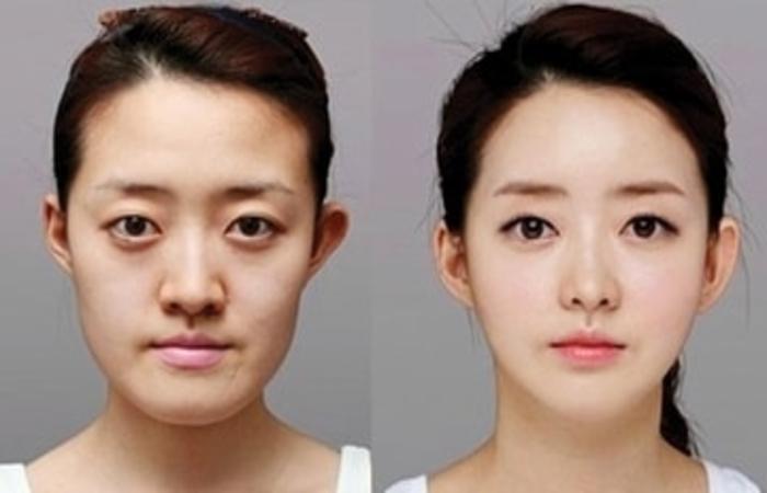 عوارض جراحی زیبایی فک چیست ؟