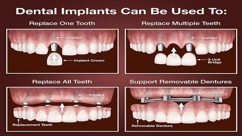 مراحل ایمپلنت دندان زیر نظر بهترین متخصص ایمپلنت اصفهان