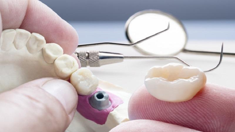 انواع زیبایی دندان با ایمپلنت
