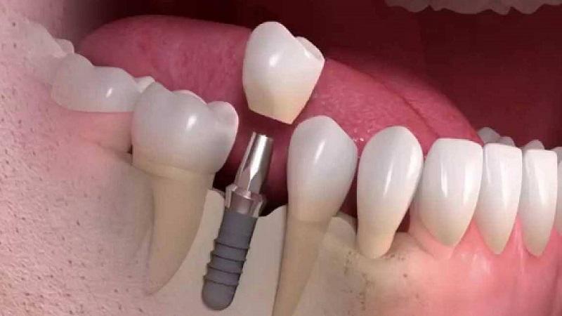 تعداد جلسات ایمپلنت دندان در اصفهان