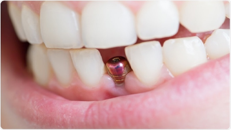 تعویض ایمپلنت دندان