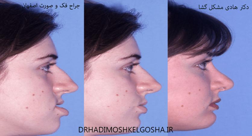 بهترین متخصص ایمپلنت اصفهان