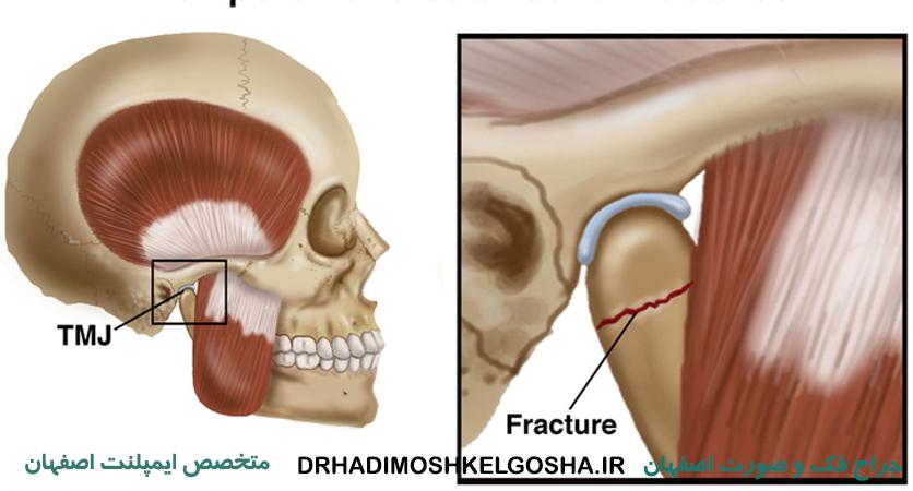 جراحی آسیب های ترافیکی اصفهان