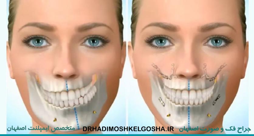 متخصص جراحی عفونت های فک و صورت در اصفهان