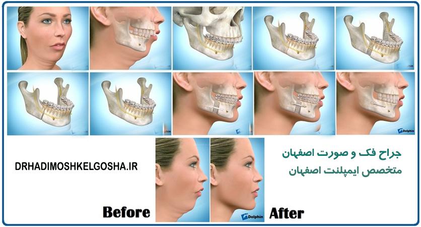 جراحی دو فک در اصفهان