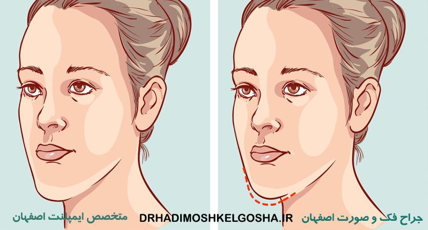 بهترین جراح فک و صورت اصفهان