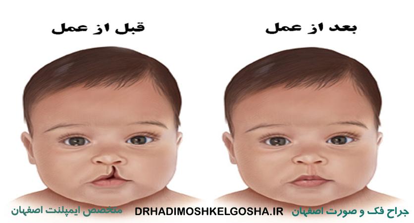 درمان شکاف لب و کام در اصفهان
