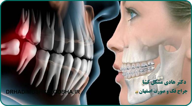 جراحی عفونت های فک و صورت