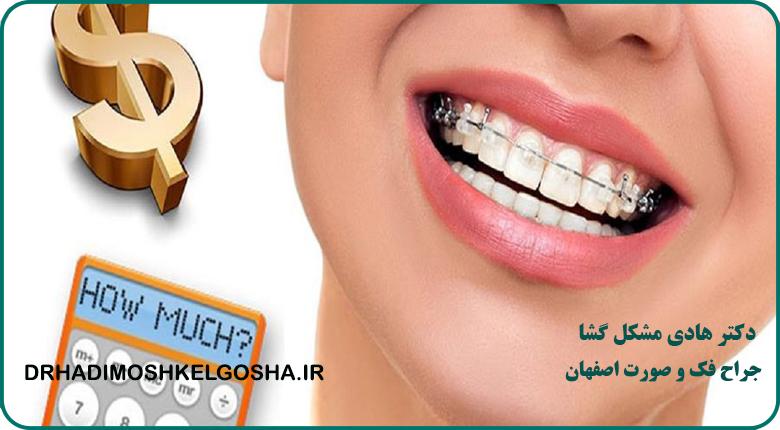 هزینه های تقریبی ترمیم دندان